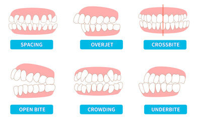 List of dentitions that require treatment: crowding, opposite occlusion, open bite, maxillary anterior protrusion, cavities, dentition