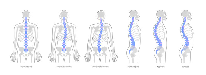 Spinal deformity flat vector illustration