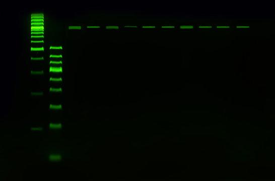 PCR band on agarose gel using  by molecular technique. Molecular analysis