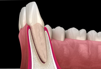 Morphology of maxillary lateral incisor tooth and gum. Medically accurate dental 3D illustration