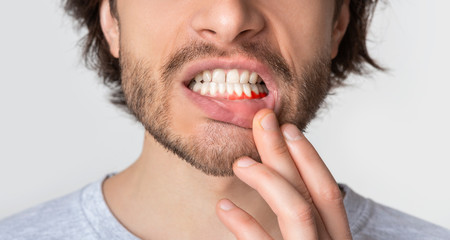 Man suffering from toothache, tooth decay or sensitivity