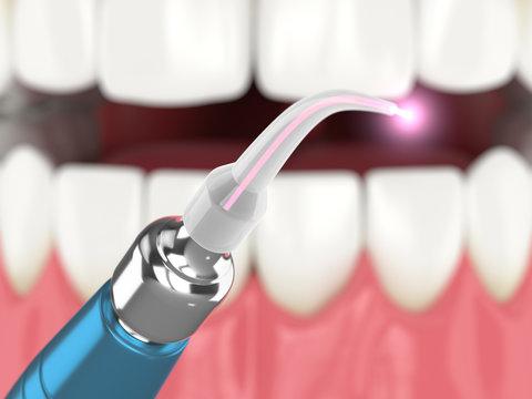 3d render of dental diode laser used to treat gums