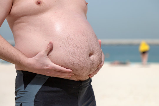 Male big belly, obesity problem. A man holds his huge fat belly with his hands while standing on sea beach
