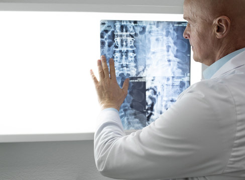 doctor examining patients Spine x-ray and MRI scans. Diagnosis of diseases of the spine, injuries of the back and cervical spine