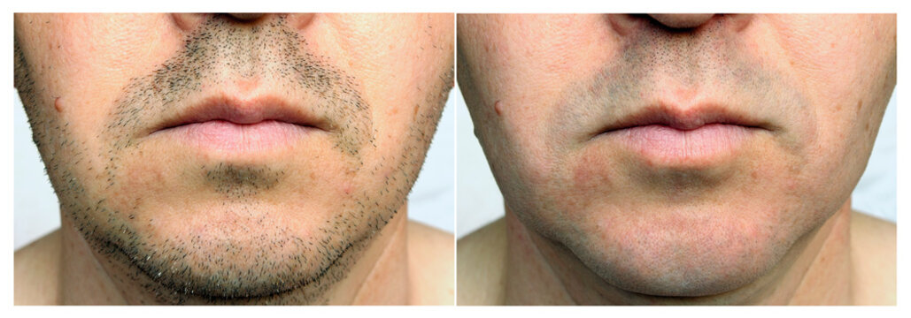 A set of two photographs of men before and after shaving. After shave effect. Depilation of facial hair. Close-up.