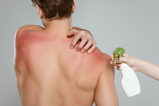 Cropped view of woman with bottle of spray near man touching skin with sunburn isolated on grey