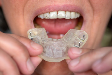 Woman suffering from bruxism holding up a guard