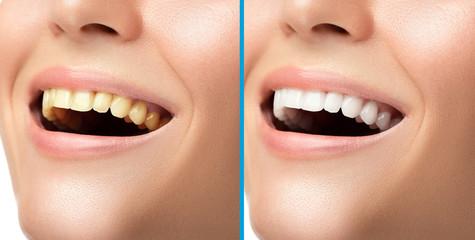 Teeth whitening and hygiene