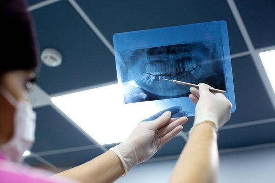 dentist checks x ray photo of mouth