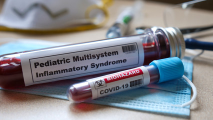Pediatric multisystem inflammatory syndrome. kawasaki disease symptoms.