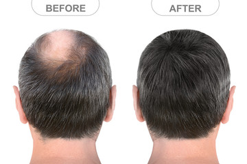 Back view of male head before and after hair extensions
