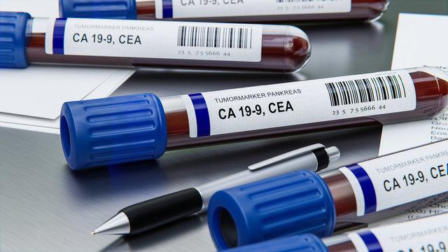 Analyse Tumormarker Blut Pankreas Krebs (Bauchspeicheldrüsenkrebs)
