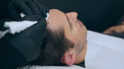 High quality close-up of a man laying on a couch during the esthetician hair treatment. Male tricopigmentation service. Scalp micropigmentation treatment. Trichopigmentation procedure.