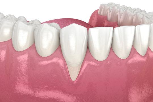 Gum Recession. 3D illustration of Dental problem