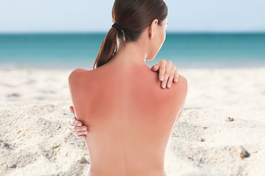 Woman with sunburn on beach. Skin protection from sun in summer
