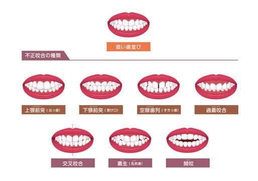 歯並び・歯列・不正咬合の種類 ベクターイラストセット