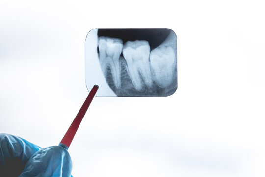 gloved dentist surgeon holds x-ray of lower retarded wisdom tooth. Film noise effect