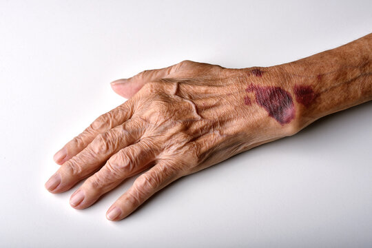 Bruise wound on senior people wrist arm skin, Falls injury accident in elderly old man.