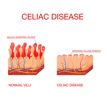 Coeliac disease or celiac disease. small bowel showing coeliac disease . normal villi and villous atrophy. Healthy and damaged villi on a white background.