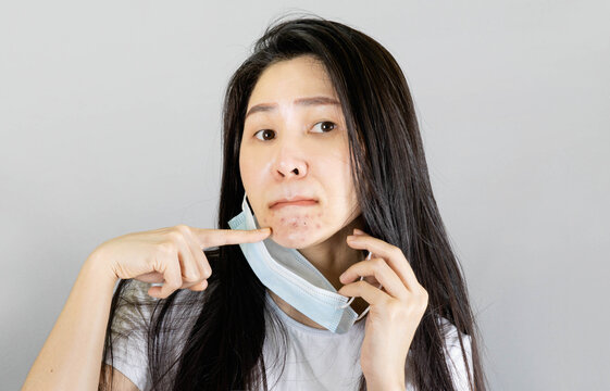Young asian woman wearing medical face mask and white t shirt, her hand point at pimple on chin,Skin allergy From wearing a mask