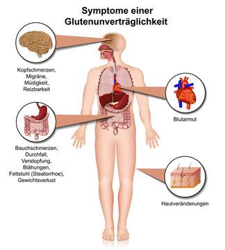 Symptome einer Glutenunverträglichkeit, Zöliakie Infografik isoliert auf weißem Hintergrund mit Beschreibung deutsch