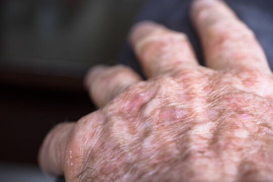 Lesions of actinic keratosis or sunspots on sun-damaged skin of the hand of a man. This can be treated with cryosurgery or certain ointments