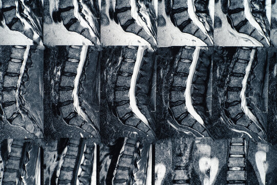 Macro photo of MRI of lumbar spine with osteochondrosis, age-related changes in discs of vertebrae and pinched nerves.