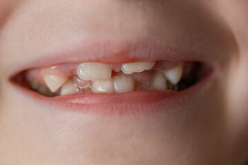 Foto op Canvas Sweet Monsters Baby's mouth with teeth. Close up portrait of 6 years old girl without milk teeth.