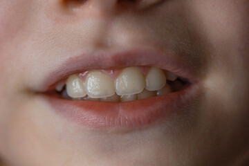 Foto op Canvas Sweet Monsters Girl's mouth with white teeth. Close up portrait of teenager with permanent teeth.