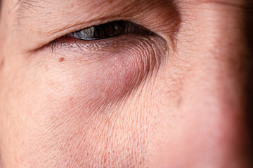 Men eye with wrinkle and mole .skin aging problem.