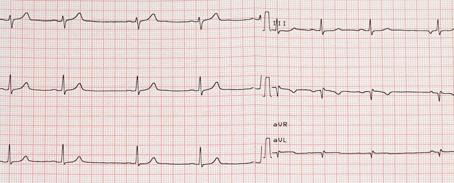 Electrocardiogram example of a normal 12-lead sinus rhythm
