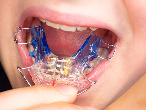 Patient photo of teeth with orthodontic braces.