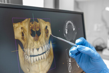 Dental consultation with 3D tomography image