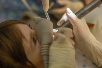 Photo sur Plexiglas Doux monstres doctor treats a milk tooth to a toddler in a dental clinic