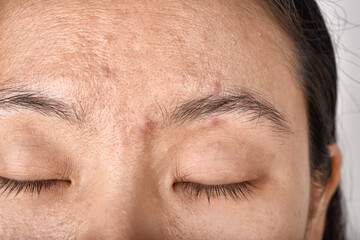 Facial skin problem, Aging problem in adult, wrinkle, acne scar, large pore and dark spot, Dehydrate skin.