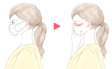 マスクをした横顔の女性とマスク荒れ 摩擦と炎症