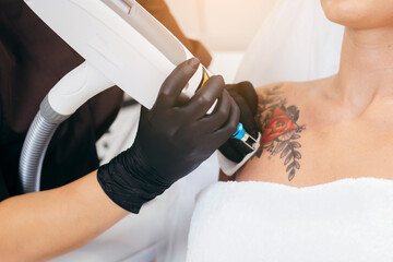 Laser tattoo removal from shoulder