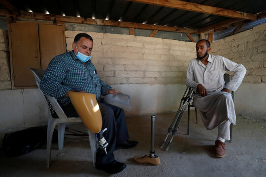 Palestinian Bedouin amputee sees new lease on life from prosthetic leg