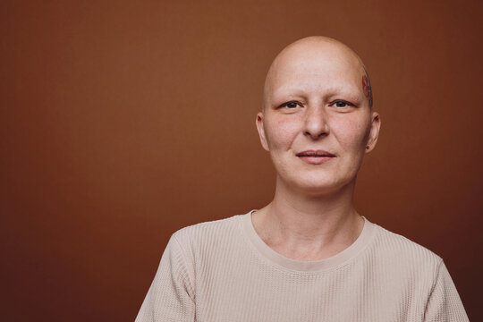 Minimal head and shoulders portrait of bald woman smiling at camera while posing against warm toned background in studio, alopecia and cancer awareness, copy space
