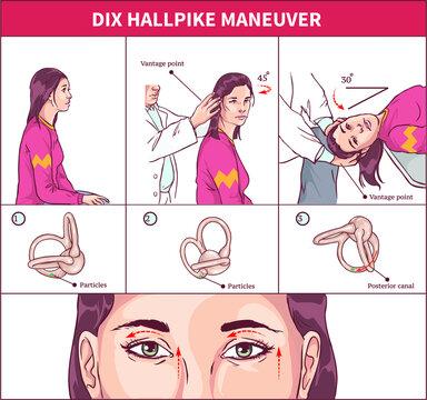 Dix Hallpike Maneuver Vector  illustration