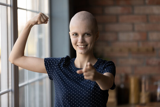 Portrait of young sick hairless woman struggle with cancer show strength power beating disease, happy ill female patient point at screen, feel optimistic strong battling oncology, healthcare concept