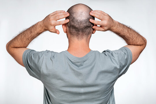 A man holds his hands over his bald head, demonstrating focal alopecia. Rear view. The concept of baldness and male alopecia