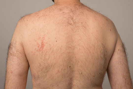 Allergy reaction is red spots on the body of a young man.