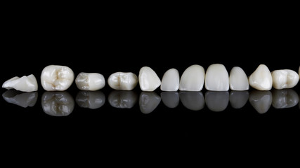 set of dental veneers for the entire upper jaw on black glass with reflection