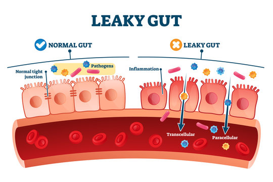 Leaky gut syndrome as medical chronic inflammation condition explanation