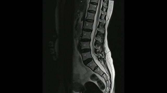 Magnetic Resonance images of Lumbar spine sagittal T2-weighted images  (MRI Lumbar spine) showing mild disc disease.