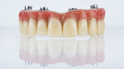 dental prosthesis for upper jaw with artificial gum on white background with creative reflection