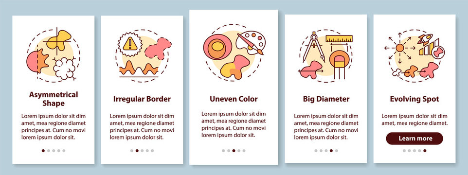 Melanoma ABCDE symptoms onboarding mobile app page screen with concepts. Big diameter. Irregular borders. Walkthrough 5 steps graphic instructions. UI vector template with RGB color illustrations