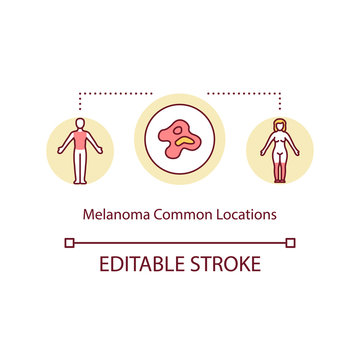 Melanoma common locations concept icon. Malignant melanoma. Primary locations of skin cancer idea thin line illustration. Vector isolated outline RGB color drawing. Editable stroke