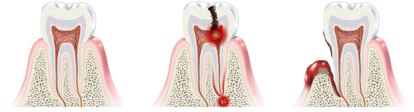 Healthy tooth, caries and periodontitis, medically illustration